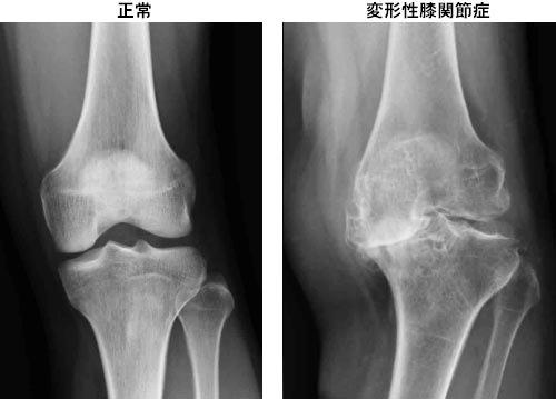 変形性膝関節症の整体