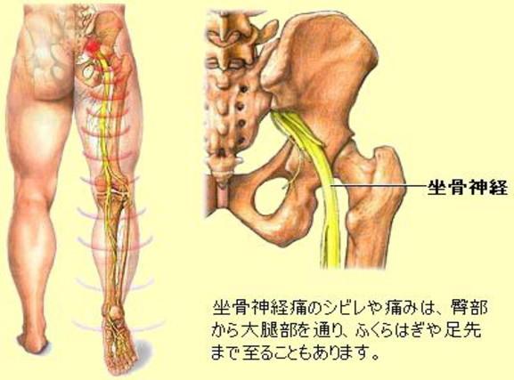 坐骨神経痛の説明