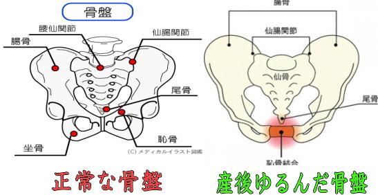 盛岡 正常な骨盤と産後にゆるんだ骨盤の画像