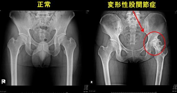 変形性股関節症のレントゲン写真