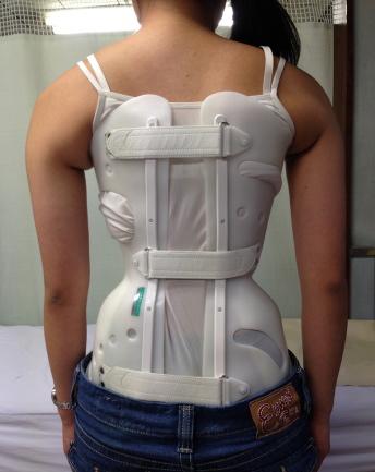 脊椎側弯症の整体