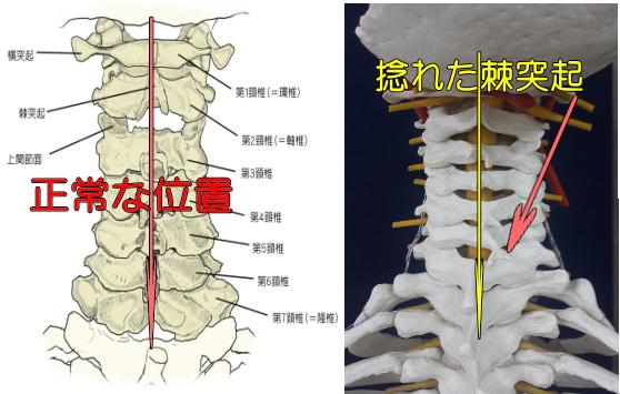 捻れた棘突起と正常な棘突起の画像