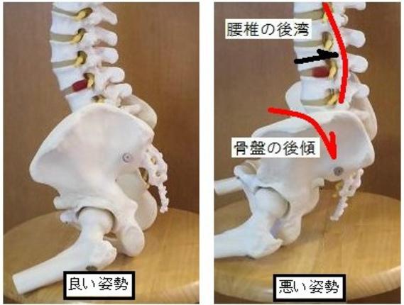 良い姿勢と悪い姿勢の影響による骨盤の歪み画像