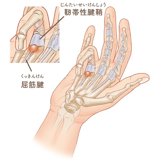 靭帯性腱鞘の説明