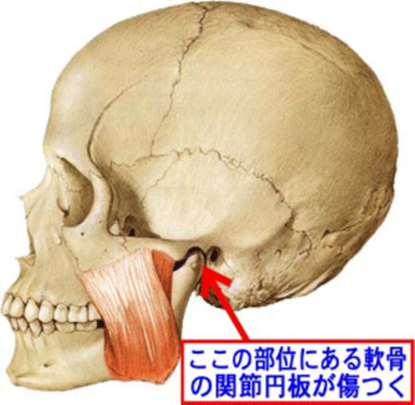 顎関節症の画像説明 盛岡 整体 滝沢